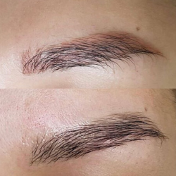 Détatouage maquillage permanent sourcils
